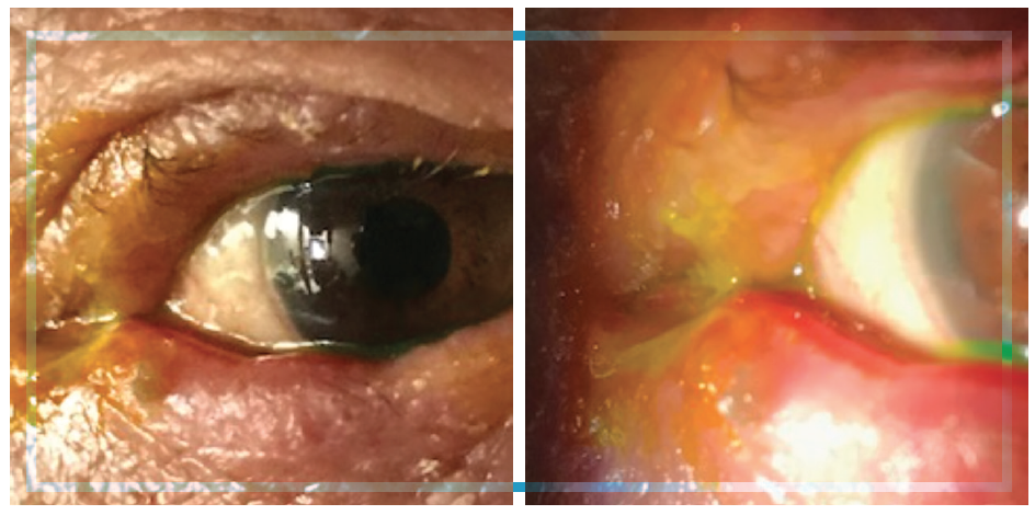 Figure. This patient had chronic blepharitis and meibomian gland dysfunction with acute bacterial conjunctivitis. Note the inflamed and edematous lid with mucopurulent discharge.